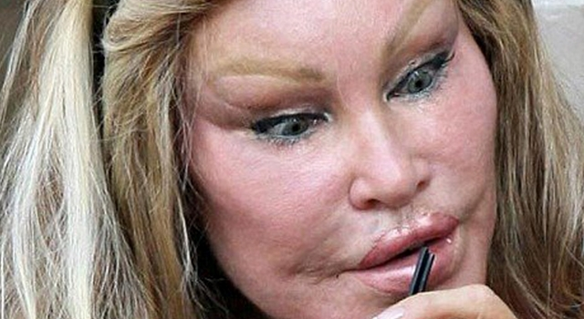 Jocelyn-Wildenstein-surprised-or-frightened